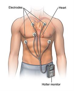 Holter monitor clipped to waistband, with electrodes attached to the chest